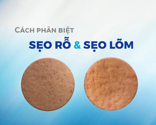 phan-biet-seo-ro-seo-lom
