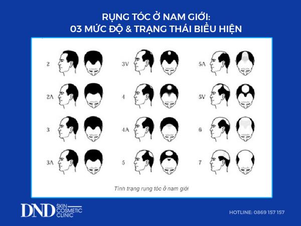 rung-toc-nam-gioi
