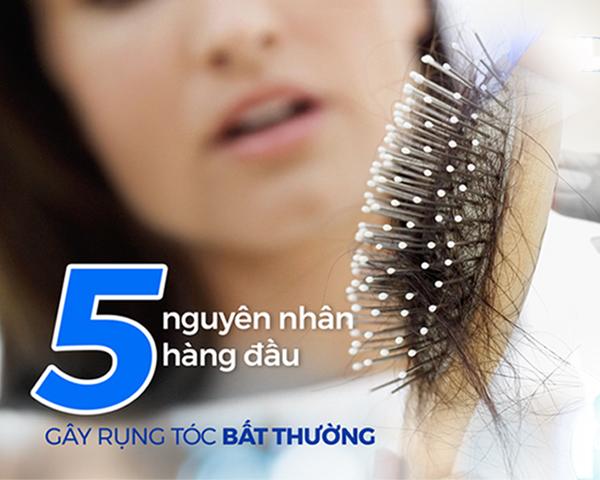 5-nguyen-nhan-rung-toc-1